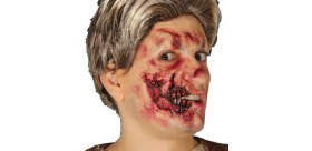 Cicatriz media boca