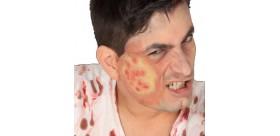 Cicatriz ampollas